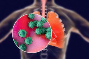 Коронавирус SARS-CoV-2 поражает главным образом дыхательные пути и легкие. © DrMicrobe / iStock